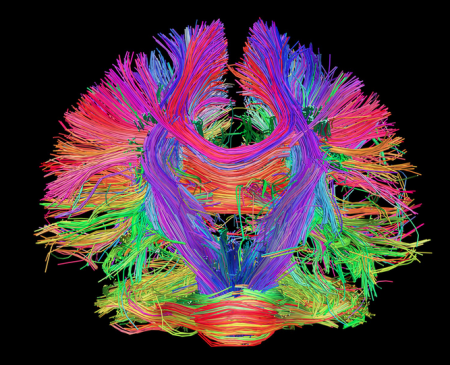 Image of underside of brain from the Human Connectome Project